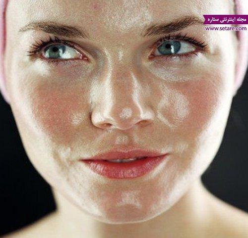 علل چرب شدن پوست چیست؟